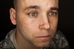 Veterans TBI